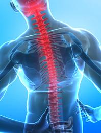 腰痛の原因イメージ