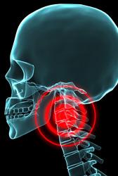 頸椎捻挫(けいついねんざ)イメージ